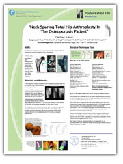 Neck Sparing Total Hip Arthroplasty In The Osteoporosis Patient